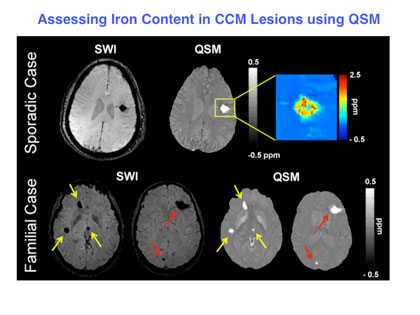 Assessing iron content in CCM lesions using QSM